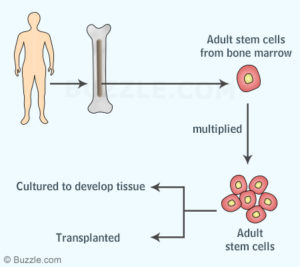 450-bone-marrow-stem-cells
